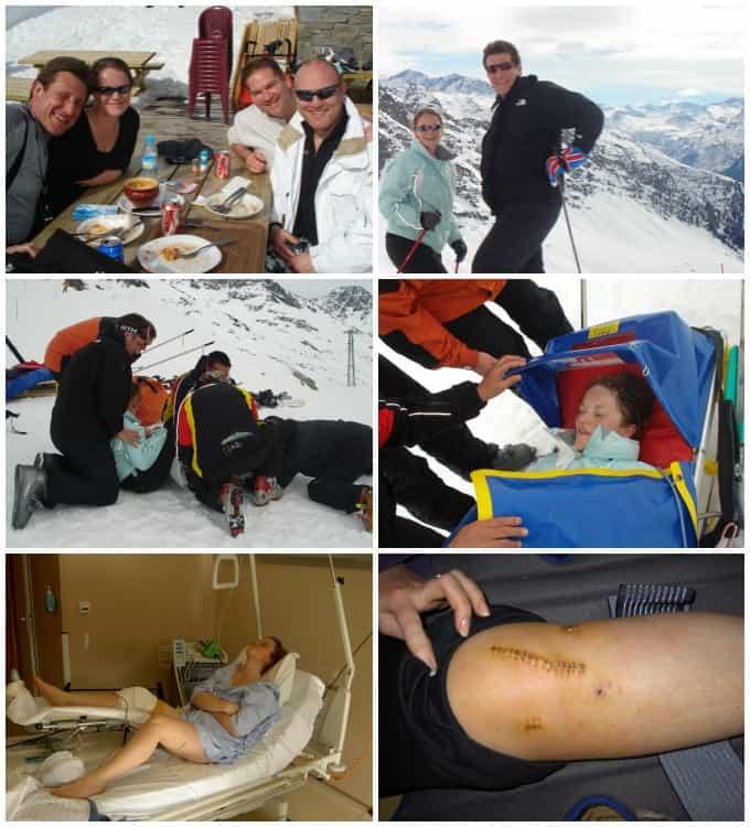 Skiing Broken Leg